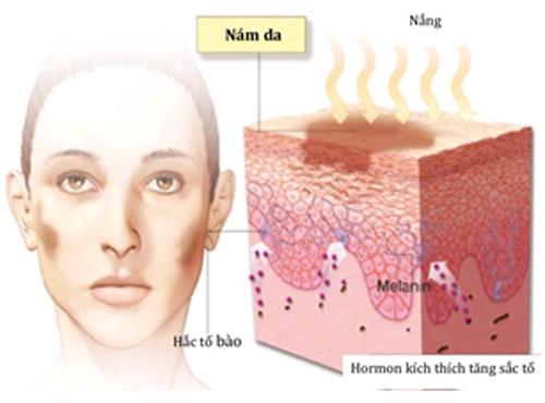 Nguyên nhân của nám da và cách trị nám tàn nhang