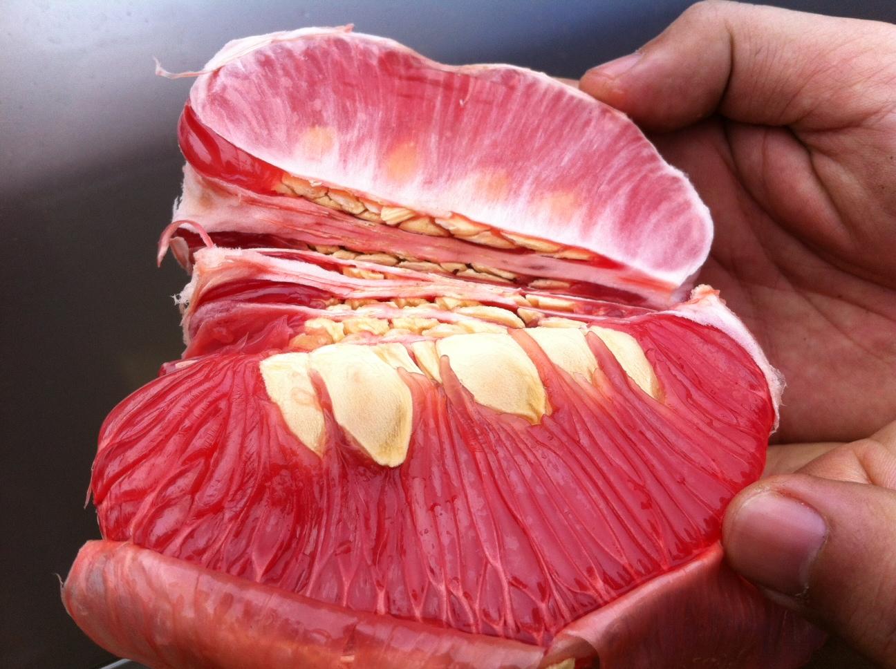 Bệnh tiểu đường ăn hoa quả gì là tốt nhất?